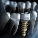 Dental Implants: Say Hello to Your New Permanent Teeth