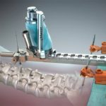 Traditional Spine Surgery Versus Robotic Spine Surgery – Details You Cannot Ignore!